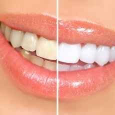 the-good-and-bad-of-teeth-whitening