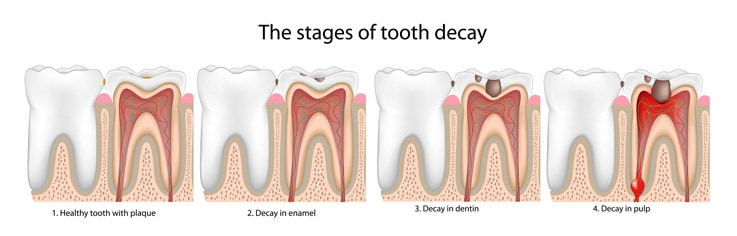 can-tooth-decay-be-reversed