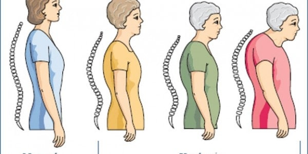 osteoporosis-in-older-adults