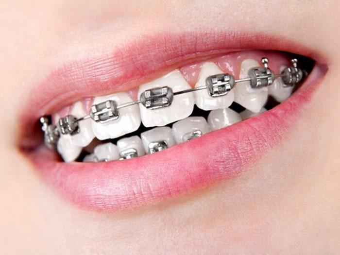 caring-for-your-teeth-when-wearing-braces