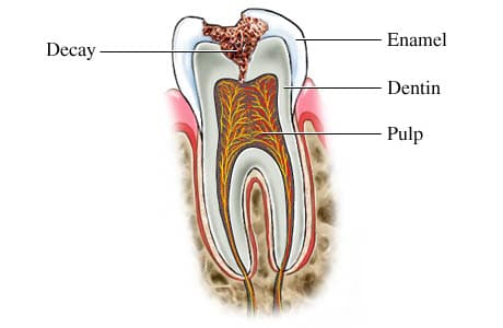 is-it-possible-to-reverse-tooth-decay