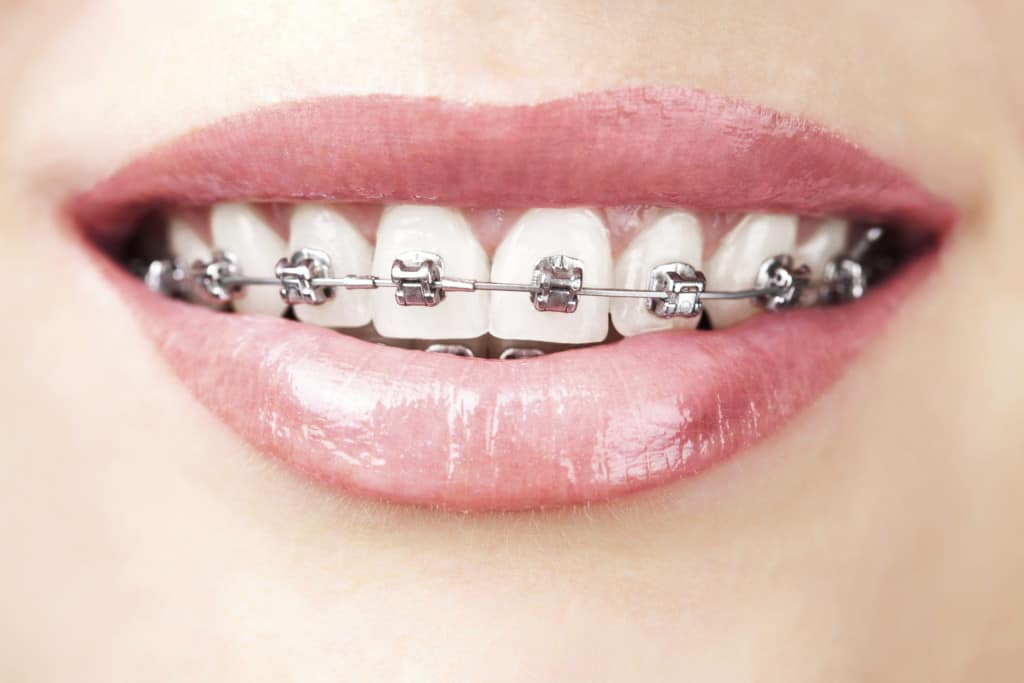 the-history-of-braces